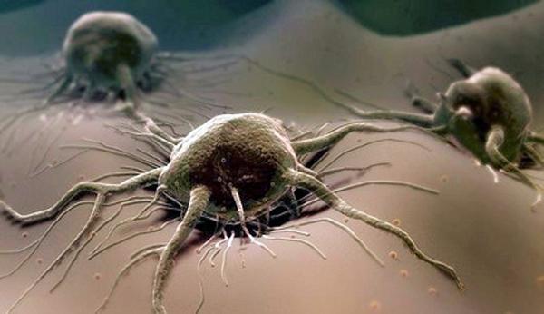 Как вылечить рак легких народными средствами