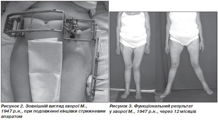 Тазобедренный сустав ендопротезування болит сустав руки