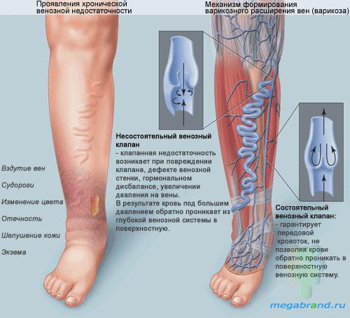 Физиотерапия при тромбозе глубоких вен нижних конечностей