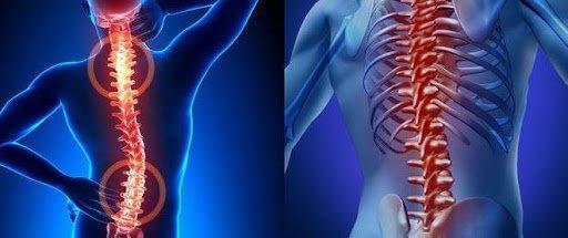 хронические болезни спины