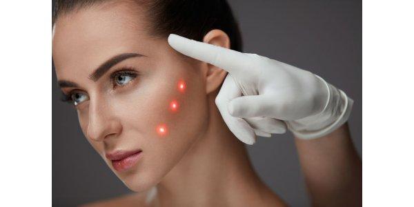 лазерна косметологія